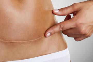 10 indicações reais da cesária